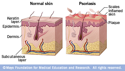 Psoriasis Effect on the Skin: The Toll Psoriasis Takes on ...