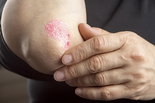 difference between eczema and psoriasis: do you know the, Skeleton