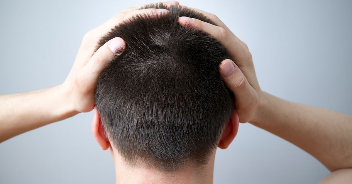 All Natural Remedies For Scalp Psoriasis